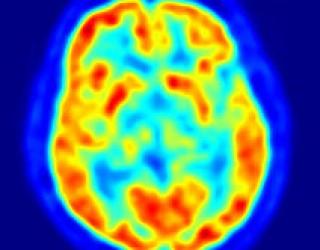 La psychothérapie change le cerveau !