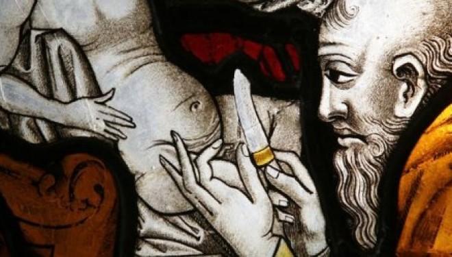 Moi, Elie Levy, juif mutilé par la circoncision