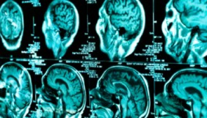 Santé : Vers un traitement des tumeurs cérébrales