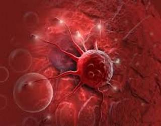 Technion (Israël) : la recherche sur le cancer avance à grands pas