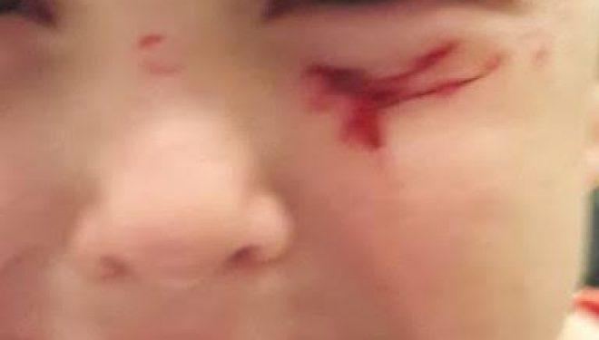 Ashdod – Danger dans le quartier Dalet: Un enfant de 4 ans blessé au visage par de l'acier rouillé dépassant du trottoir